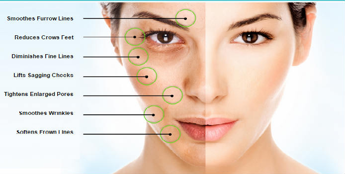 flawless-complexion_benefits