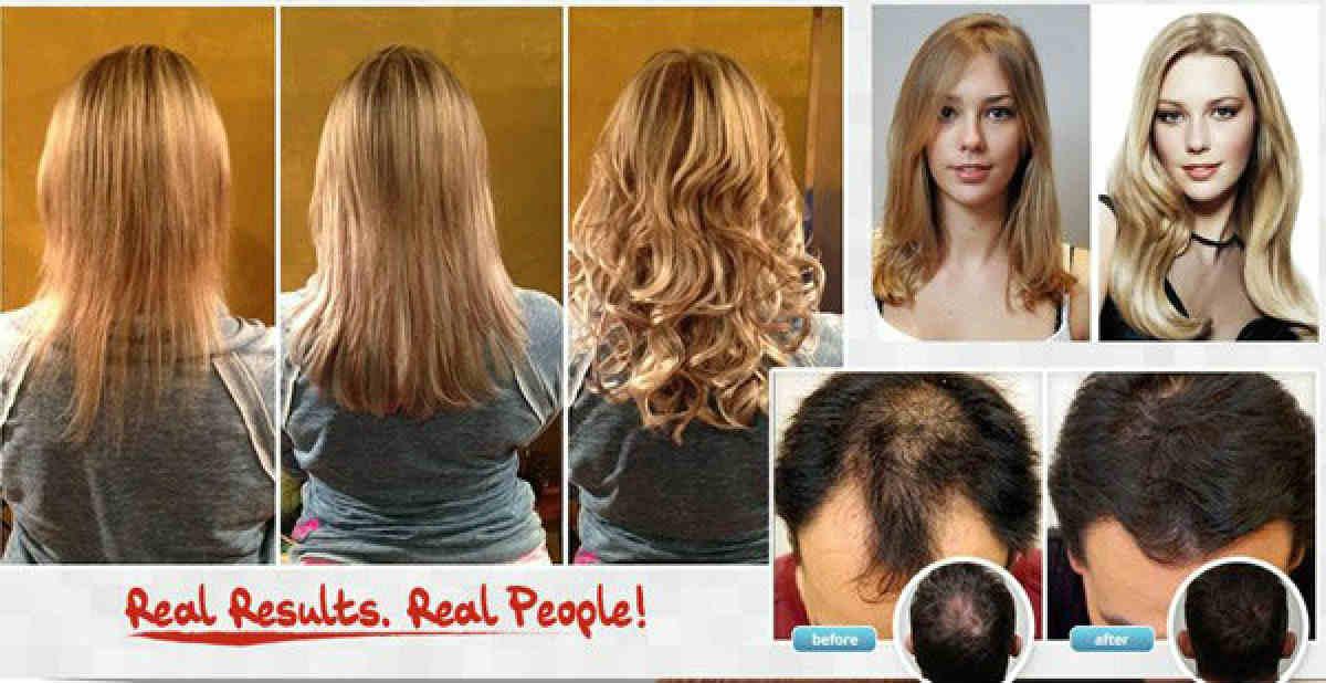 Hair Loss Treatment : FOLLINIQUE