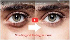 eye bags cream