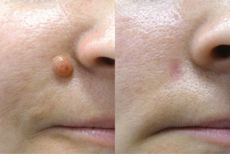 Dermaclear Pro : Mole & Skin Tags Removal