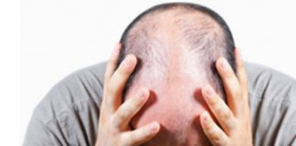 Thick Healthy Hair: hair loss